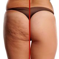 Cellulite vor und nach Radiofrequenzbehandlung